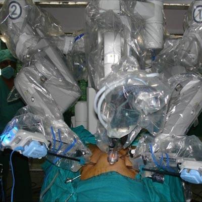 messed doctors installed robotic implants robotic organs